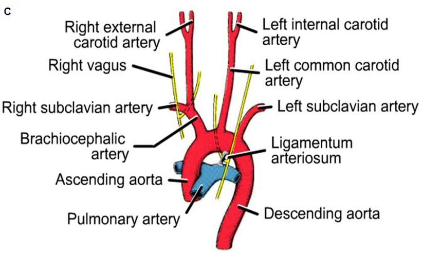 Formation of the Blood vessels (arteries) - Cardiovascular System